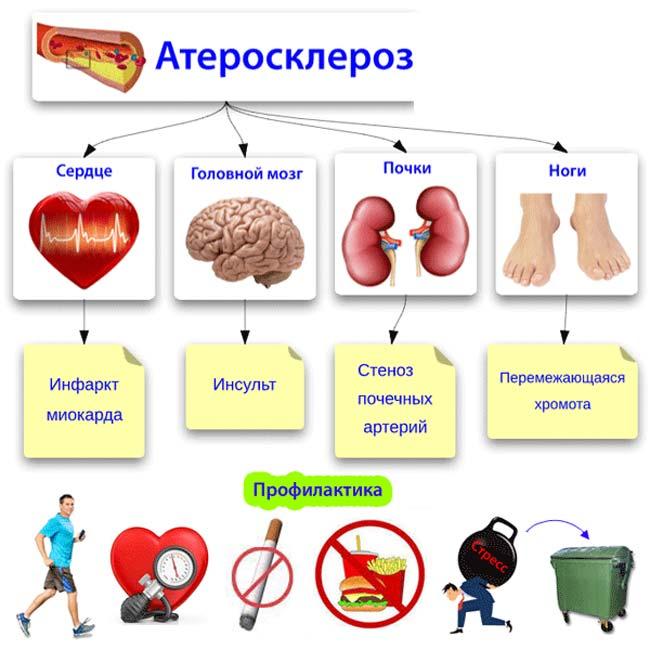 Картинки атеросклероза на ногах thumbnail