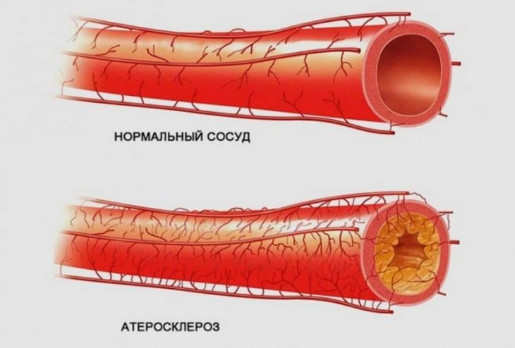 Картинки сосуды при атеросклерозе