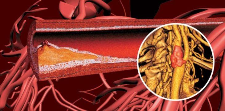 Атеросклероз сосудов на лице thumbnail