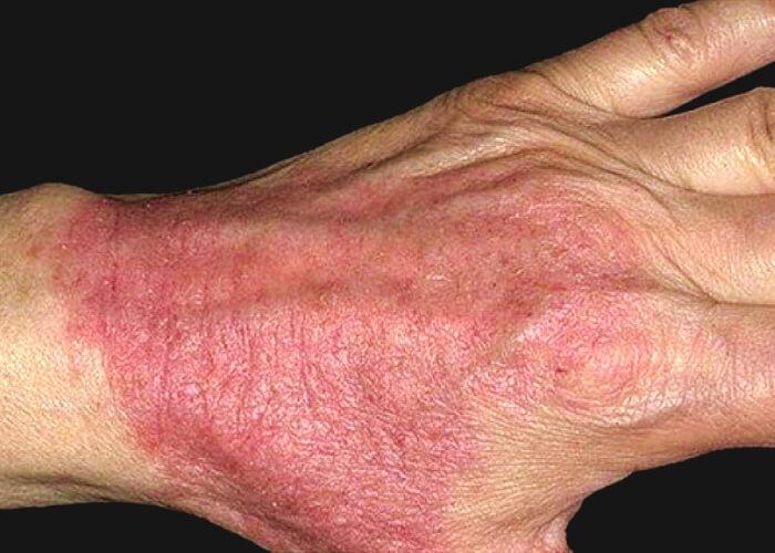 Атопический дерматит у взрослых (фото): причины, симптомы, мази и крема, меню питания