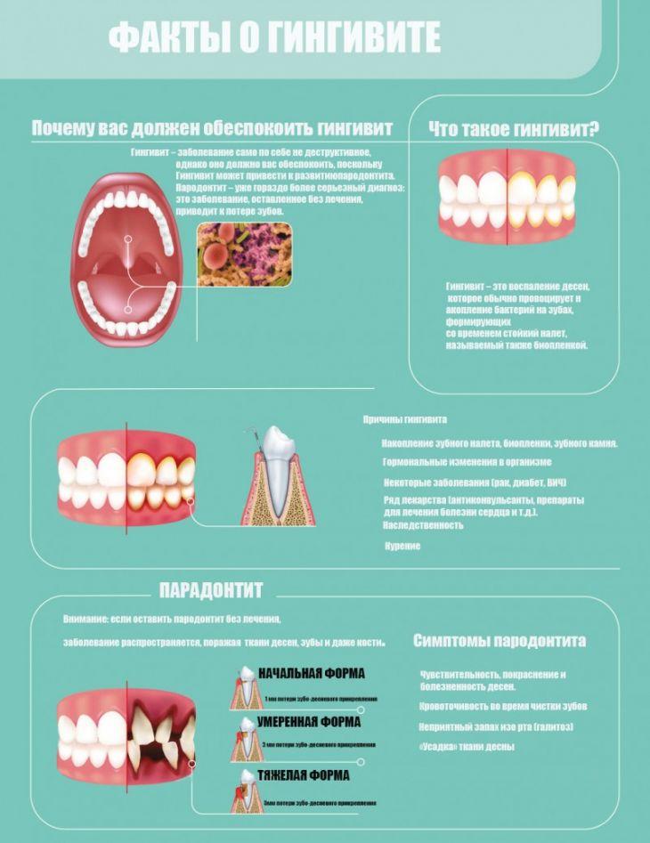 Язвенный гингивит: лечение язвенного гингивита