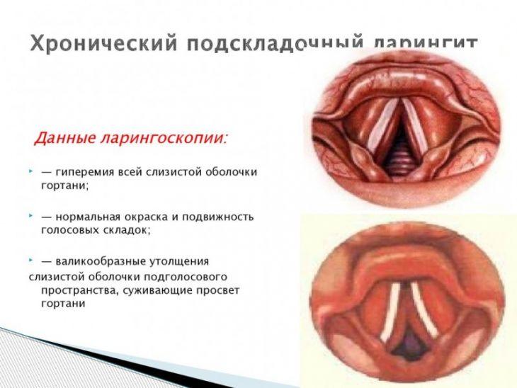 Больное горло ларингит фото thumbnail