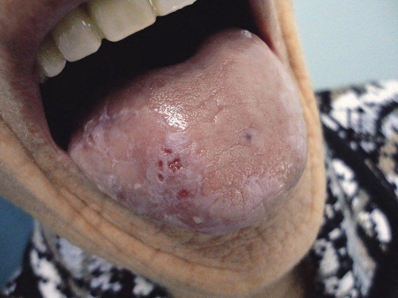 Лейкоплакия на фото