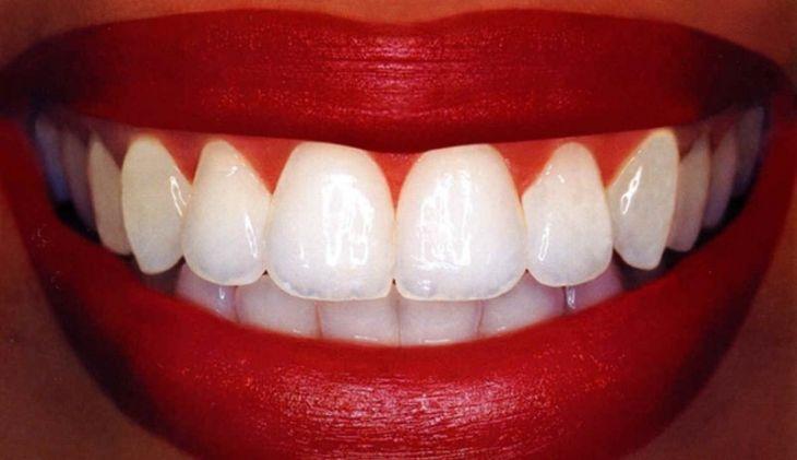Какие витамины для зубов нужно пить взрослым?