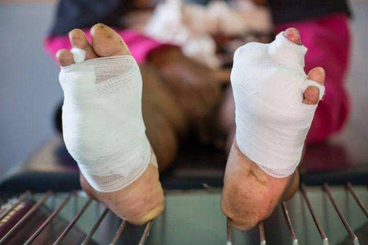 Гангрена ноги - признаки, причины, вопросы, лечение без ампутации